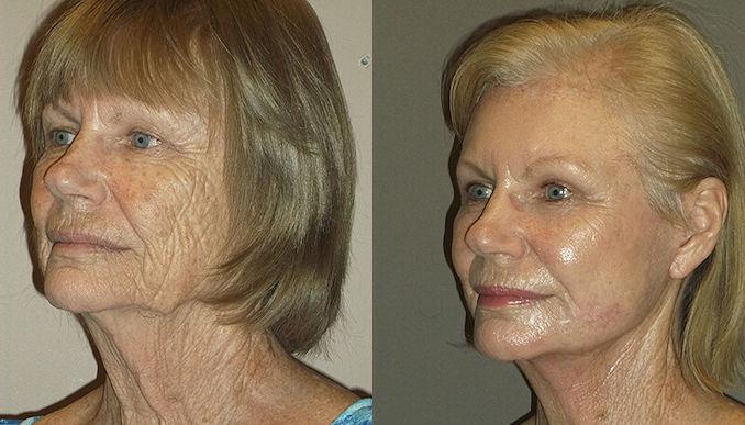 Renuvion J-Plasma wrinkles Inland Empire by Dr. Brian Machida, facial plastic surgeon, Ontario CA
