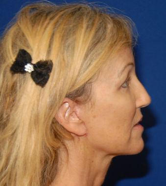 Woman, 56 After Renuvion J-Plasma facial skin resurfacing by Dr. William Seare, Carlsbad, San Diego, CA
