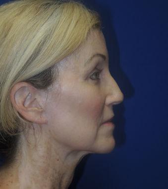 Woman, 56 Before Renuvion J-Plasma facial skin resurfacing by Dr. William Seare, Carlsbad, San Diego, CA