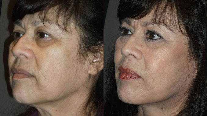 Facelift Inland Empire Before and After by Dr. Brian Machida