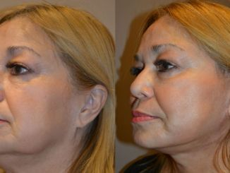 jowls inland empire, Before and After photo, facelift by Dr. Brian Machida