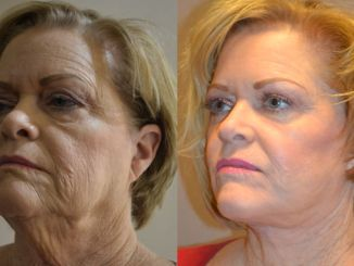 facelift Inland Empire, laser Inland Empire