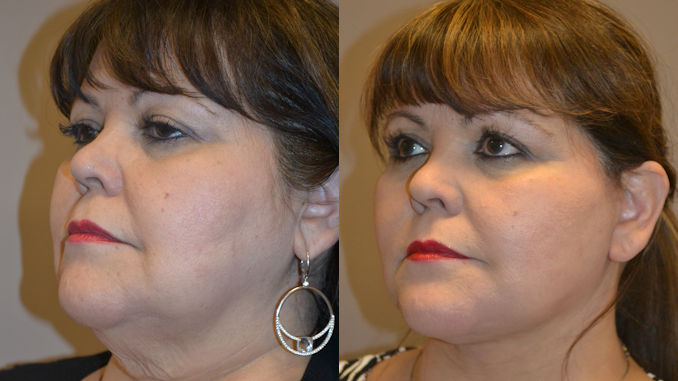facelift Inland Empire, neck lift Inland Empire by Dr. Brian Machida, facial plastic surgeon