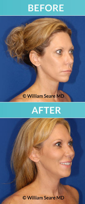 Fat Transfer + HBOT RS Before & After by Dr. William Seare