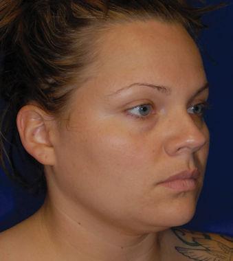 Rebecca Before Neck Liposuction by Dr. William Seare