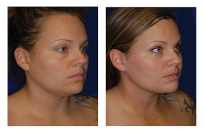 neck, liposuction San Diego, hyperbaric, Dr. William Seare