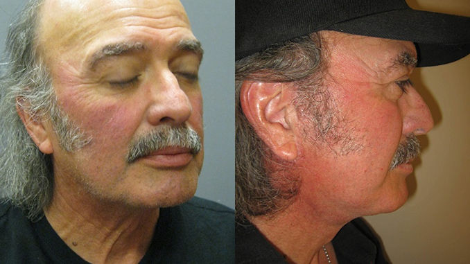 turkey neck Inland Empire, neck liposuction Inland Empire, neck lift Inland Empire, necklift Inland Empire