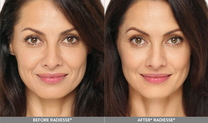Radiesse Inland Empire,nasolabial folds Inland Empire