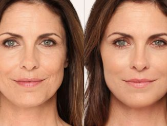 Radiesse, nasolabial folds, Inland Empire