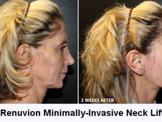 Renuvion Washington DC, Renuvion Inland Empire, neck lift