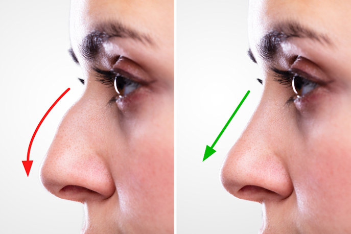 Nose job Inland Empire, Rhinoplasty Inland Empire
