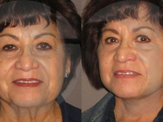 facelift Inland Empire, neck lift Inland Empire, facial plastic surgery, Dr. Brian Machida