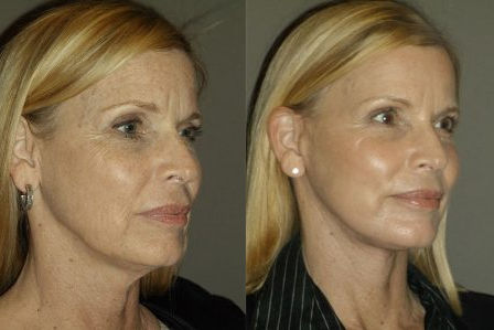 facelift Inland Empire, facelift, Before and After, Dr. Brian Machida