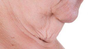 loose skin, facial plastic surgery, neck lift, Inland Empire, Dr. Brian Machida