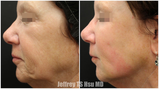 BeautiFill, jowls,fat grafting, Inland Empire, Dr. Hsu, Dr. Brian Machida