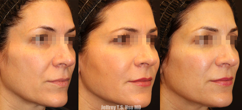 nasolabial folds, Inland Empire, BeautiFill, fat grafting, fat transfer, Inland Empire, Dr. Brian Machida