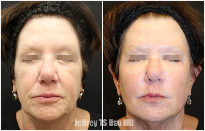 nasolabial folds, marionette lines, Inland Empire, BeautiFill, fat grafting, fat transfer, Dr. Jeffrey Hsu, Dr. Brian Machida