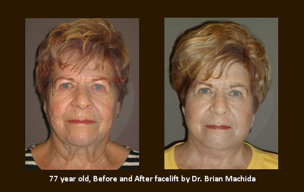 facelift Inland Empire, face lift Inland Empire, 70s, 70's, Dr. Brian Machida, Before and After