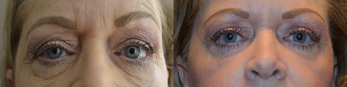 blepharoplasty Inland Empire, eyelid surgery Inland Empire, Dr. Brian Machida, STC Plastic Surgery