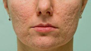 acne scars, acne scar treatment, Inland Empire