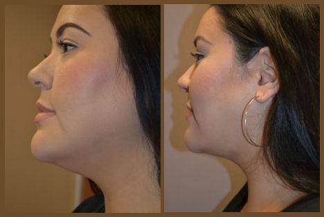 neck fat, neck fat Inland Empire, neck liposuction