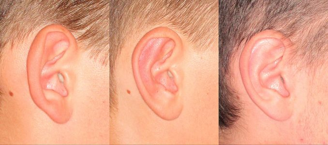ear deformities, protruding ears, otoplasty Inland Empire, ear surgery Inland Empire, ear pinning