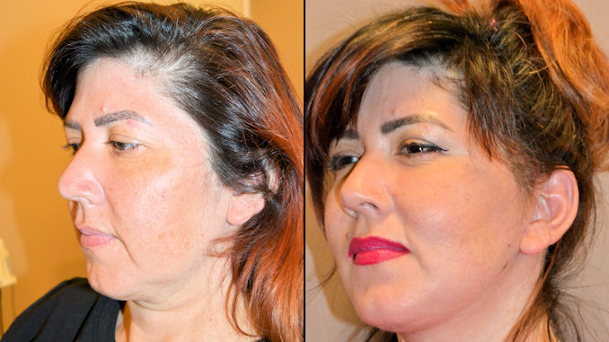 facelift Inland Empire, look better on Zoom, Zoom neck, camera face