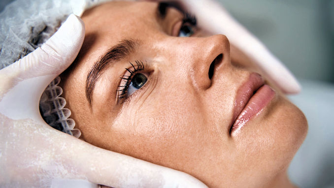 facelift vs fillers, fillers 30s, Inland Empire