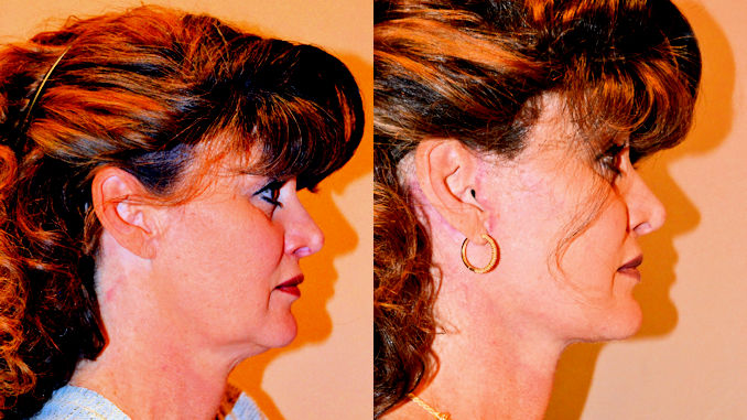 facelift before and after, facelift inland empire, how long does facelift last
