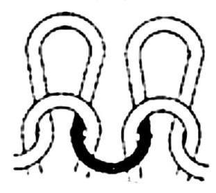 sinker-loop