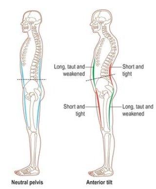 Anterior Pelvic Tilt kan ook zorgen voor ongewenst urineverlies (tijdens het sporten)