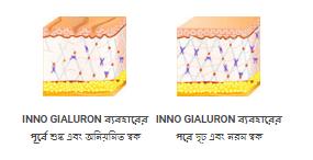কার্যকর Inno Gialuron