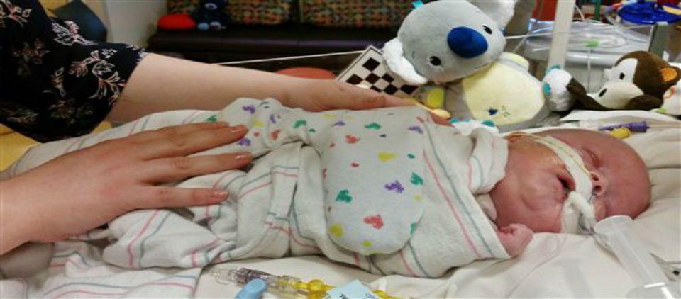 Bebé prematuro recibe trasplante de corazón - bebé recibe trasplante corazón_ap