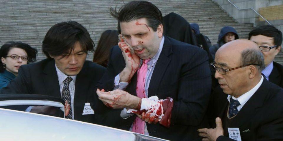Atacan a embajador de EE.UU. en Corea del Sur - Embajador de EE.UU. en Corea del Sur