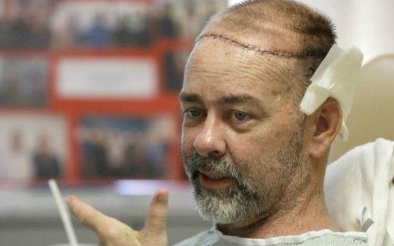 Primer trasplante de cráneo y cuero cabelludo en el mundo - Foto de Internet