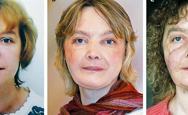 Muere primera paciente de trasplante facial en el mundo