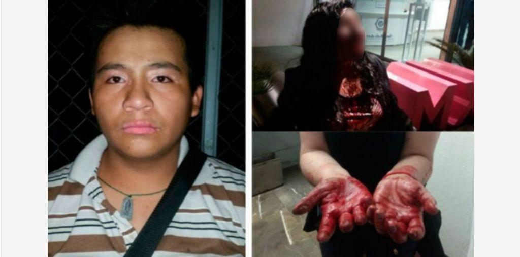 Mujer se opone a atraco y le desfiguran la cara en Metro Tacuba