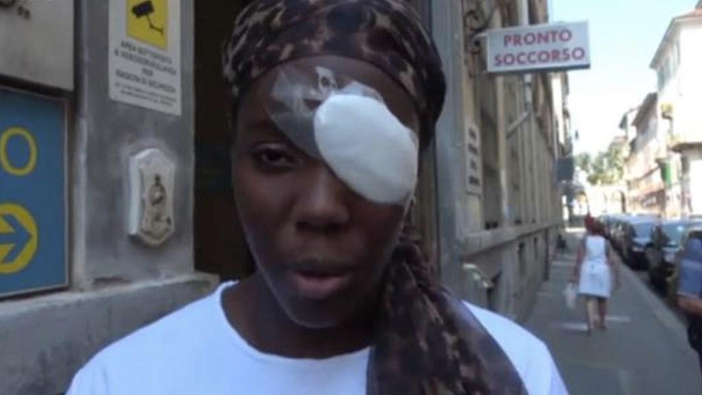 Lesionan a atleta durante ataque racista en Italia - Captura de pantalla