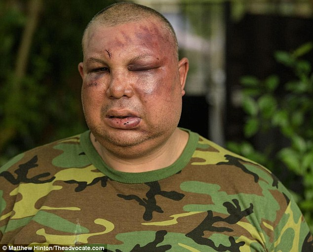 Despiden a policías de EE.UU. que golpearon a hombre por