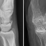 La osteoporosis es más mortal en hombres que en mujeres - la osteoporosis es más peligrosa para los hombres por fracturas de cadera o columna