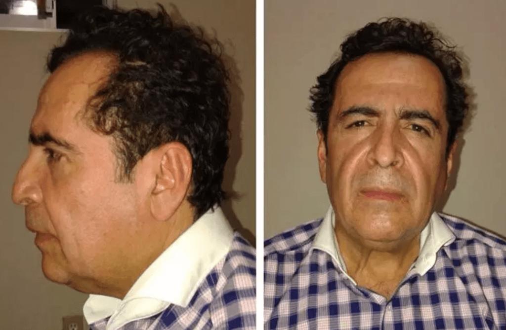 Murió Héctor Beltrán Leyva. Noticias en tiempo real