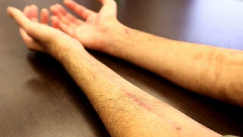 Heridas de Jamal. Foto de Toronto Sun