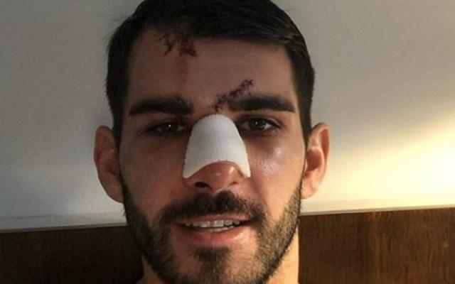 #Video Futbolista termina con el rostro ensangrentado tras ser pisado por rival - Foto de Internet