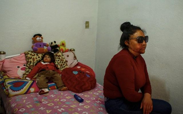 Ataque con ácido lastimó mi piel y mi vida: víctima de violencia - Foto de Notimex