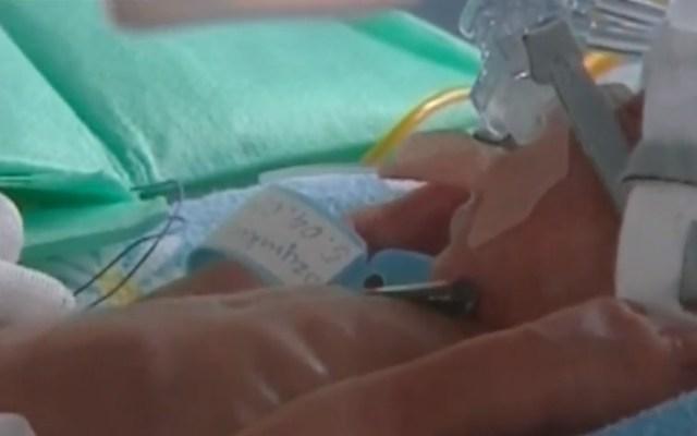 Nacen sextillizos por primera vez en Polonia - Sextillizo. Captura de pantalla / TVN24