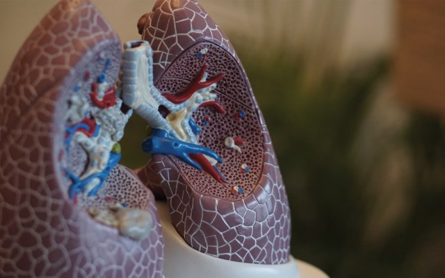 Cáncer de pulmón mata a 21 mexicanos diariamente - Foto de Robina Weermeijer @averey