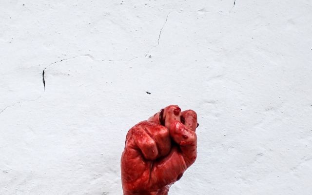 La hemofilia, el miedo a vivir siempre con el peligro de las hemorragias - Photo by Valentin Salja on Unsplash