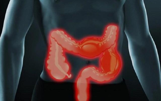 Enfermedad inflamatoria intestinal afecta a jóvenes mexicanos - Enfermedad Inflamatoria Intestinal. Foto de Todo Noticias