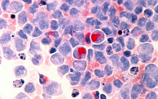Diagnóstico oportuno, indispensable para tratar leucemia mieloide aguda - Leucemia
