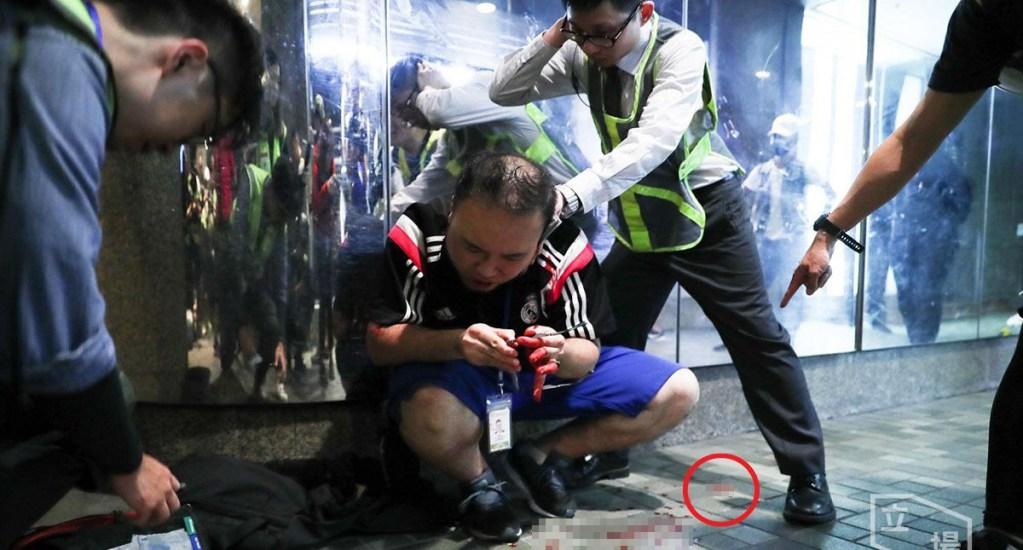 Hombre corta oreja a concejal durante manifestación en Hong Kong - Un hombre cortó parte de la oreja izquierda al concejal de Hong Kong, Andrew Chiu Ka-yin. Foto de Stand News